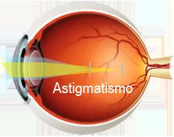 http://www.opticacartaya.es/images/ojo-astigmatismo.png